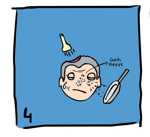 brain-surgery-5